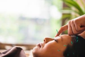 Young woman at acupuncture treatment for migraine