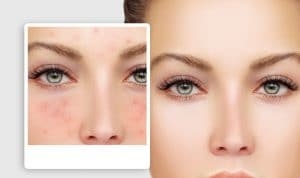 Cosmetic acupuncture for acne before and after