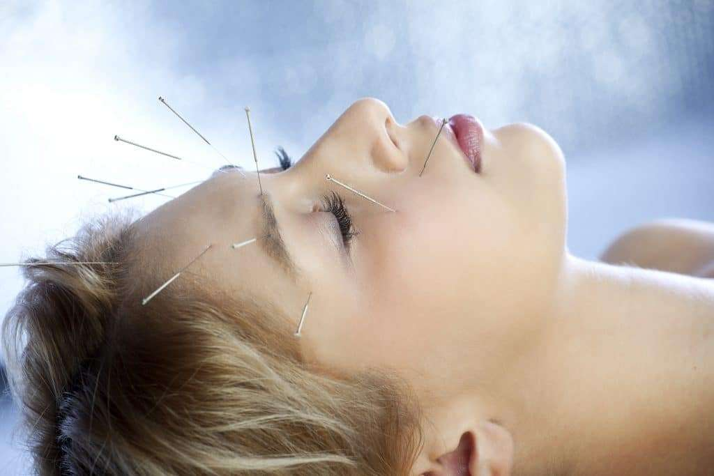 Acupuncture treatment to a young girl for stress and anxiety