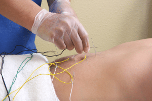 Electro acupuncture to back