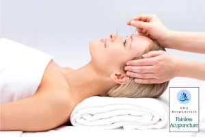 painless acupuncture general